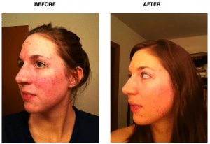 acne tips before and after