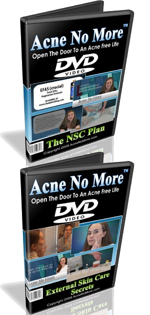 acne information