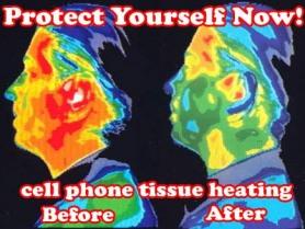 cell phone radiation damage