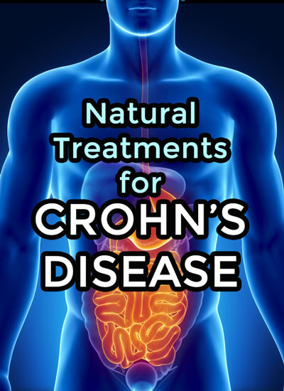 remedies for crohn's