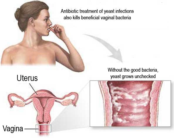 treat yeast infection naturally