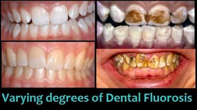 dental fluorisis