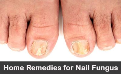 best remedies for toenail fungus
