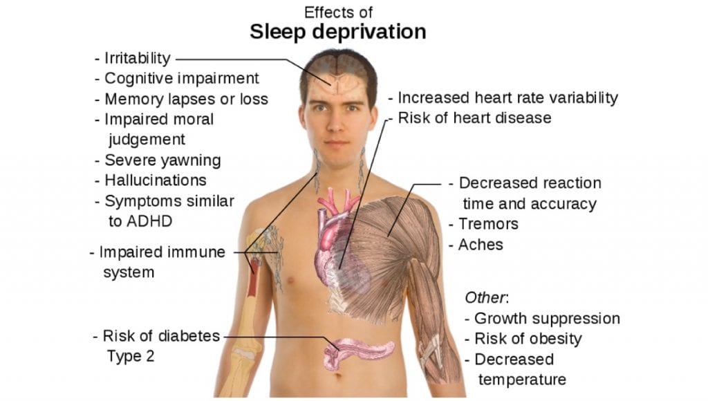 risks of sleep deprivation