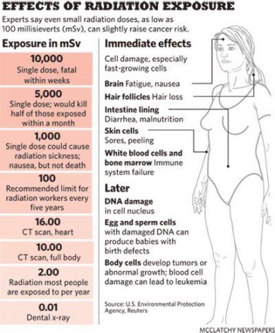 radiation risks