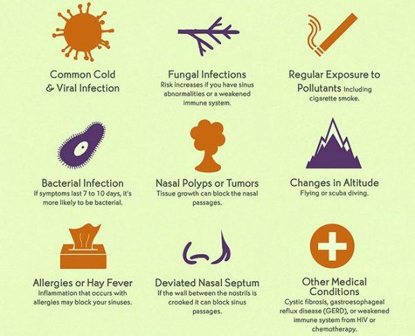 What Causes Sinusitis