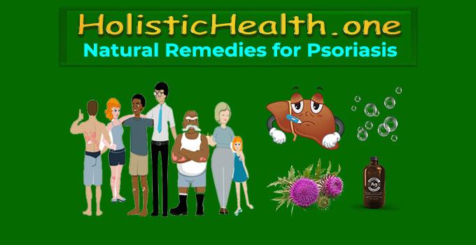 natural psoriasis remedies