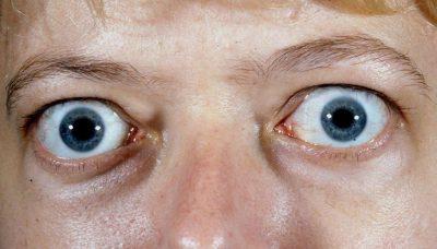 Graves Disease Eye