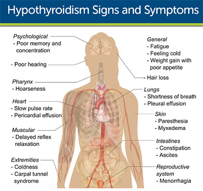 signs of hypothyroidism
